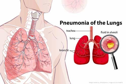 Erica vs. Pneumonia (again)